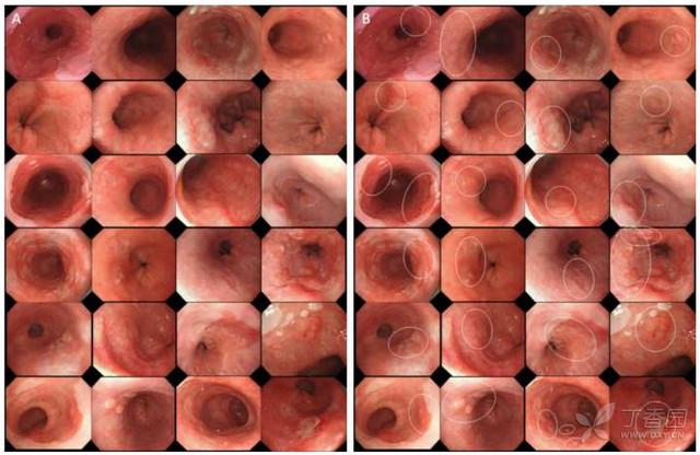 大胆漏逼艺术囹�a_内镜成像对barrett食管早期肿瘤诊疗价值有限