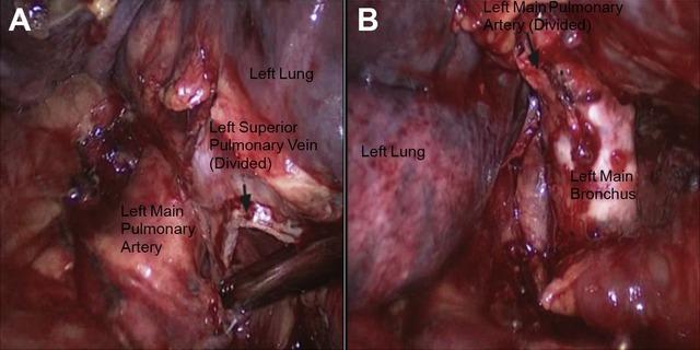淋巴炎_左肺上叶炎性病变,纵隔淋巴结增大,是肺炎还是什