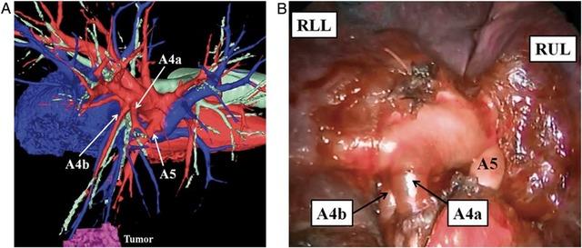 3d-ct在胸腔镜肺叶肺段切除中的应用图片