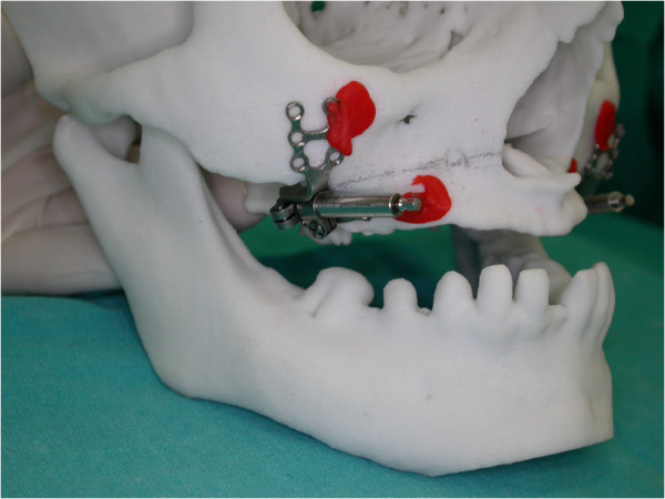 釉质发育不全伴错牙合畸形一例