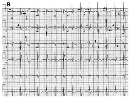 心电图挑战 植入 ICD 的老爷爷