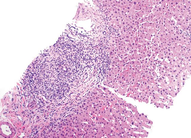原发性胆子性肝硬化的详细介绍
