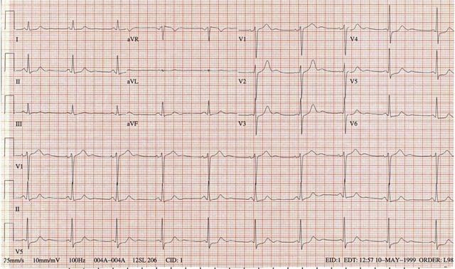 心电图 2 显示:窦性心动过缓;i,ii,iii,avf,和 v3-v6 导联 st 段压低