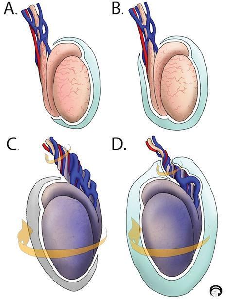 图1 A 为正常睾丸解剖结构:正常情况下,鞘膜(淡蓝色)覆盖除睾丸