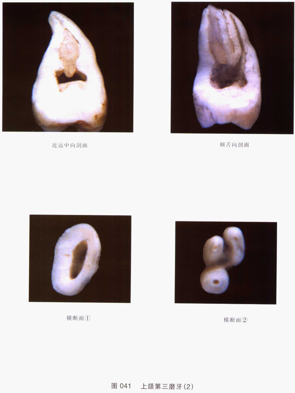 系列图谱 口腔解剖学 二