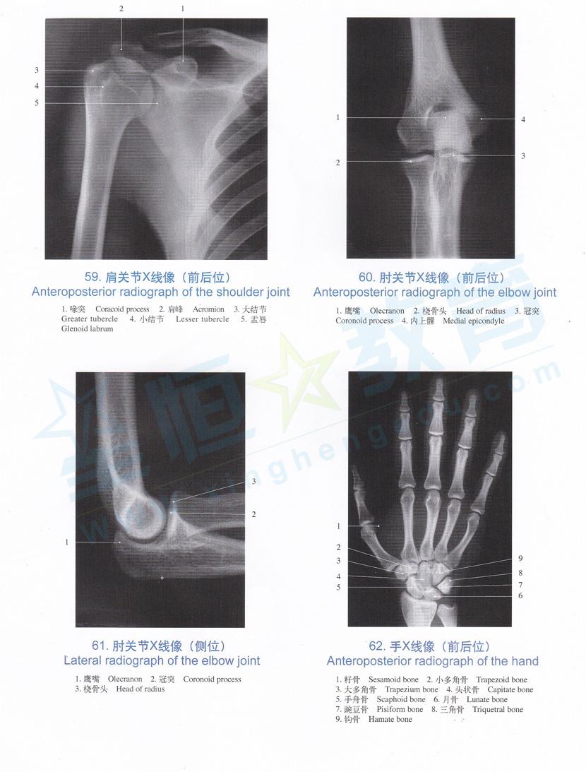 解剖图 肩关节X线像 前后位 肘关节X线像 前后位 手X线像 前后位