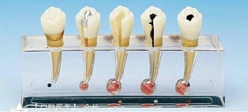 牙髓疾病-口腔考试复习精华